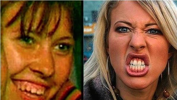 Почти все о зубном протезировании и «Голливудской улыбке» звезд отечественного и Западного шоу-бизнеса (фото звезд)